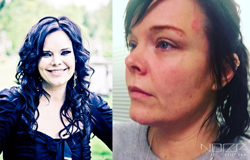 Former Nightwish singer was attacked by junkie